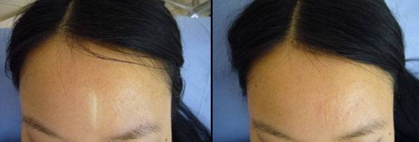 Dermopigmentation camouflage des cicatrices
