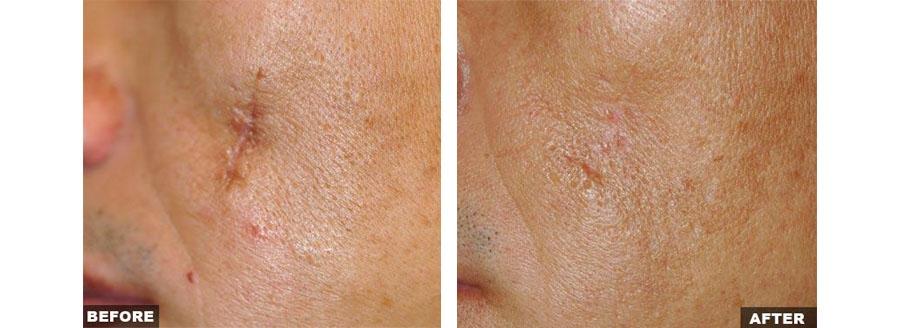 Traitement des cicatrices par laser Fraxel (Néodermage à Lyon)