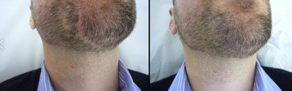 Dermopigmentation alopécie barbe