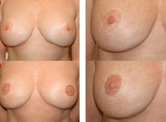Dermopigmentation des aréoles des seins