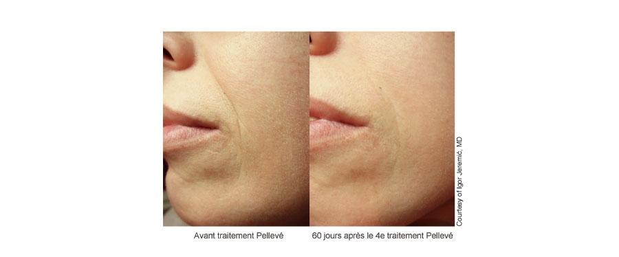 Traitement des sillons nasogéniens par radiofréquence à Lyon chez Néodermage